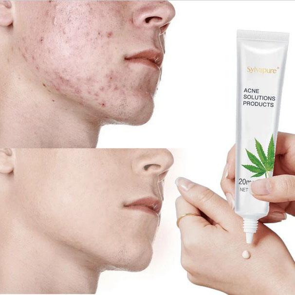 Acne Scar Remove Dark Spot Remover Lotion